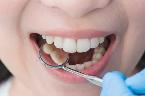 人人都能做超聲波潔牙嗎?