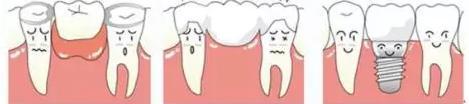 種牙安全嗎?缺牙只可以做種牙?