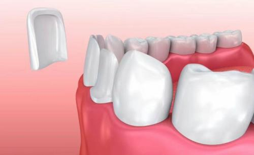 重度色素牙能做牙貼面嗎?