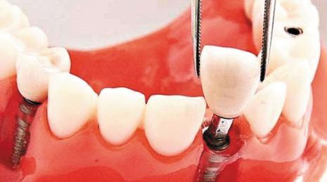 深圳種牙,種牙