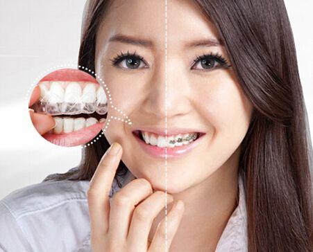深圳cool牙收費標準