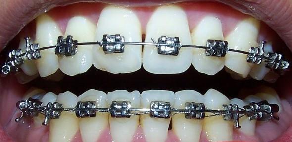 深圳牙齒矯正