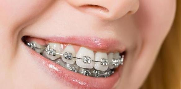 牙套有邊D類型