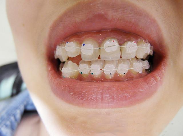 牙套有邊D類型?