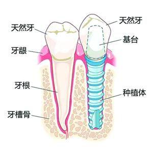 種牙危險嗎?有冇後遺症?