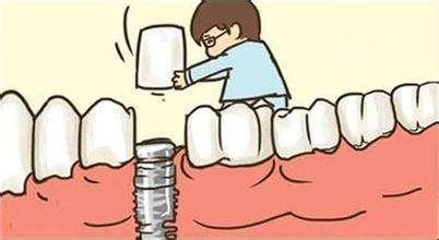 深圳植牙過程