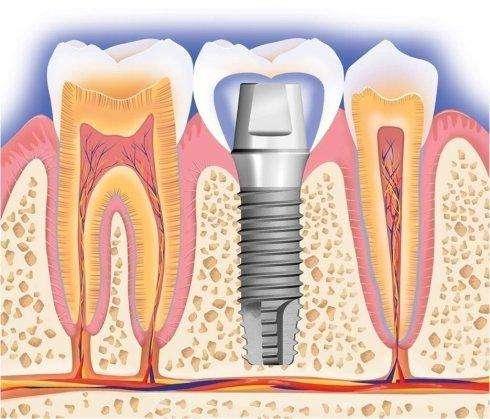 門牙缺失治療方式