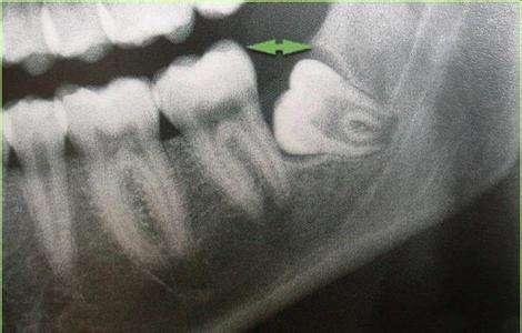 智齒嘅治療方法有邊些?