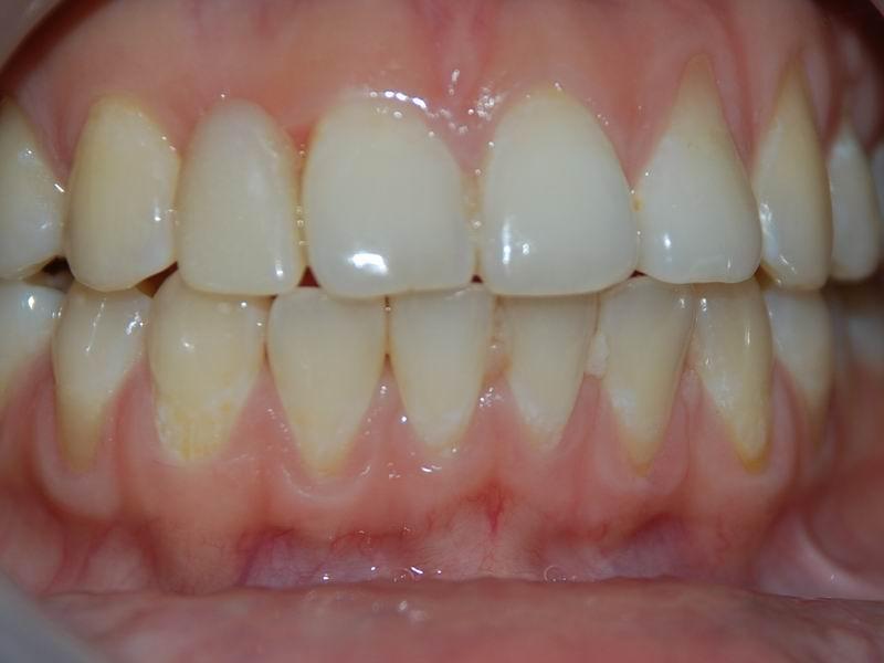 前牙種植成功案例