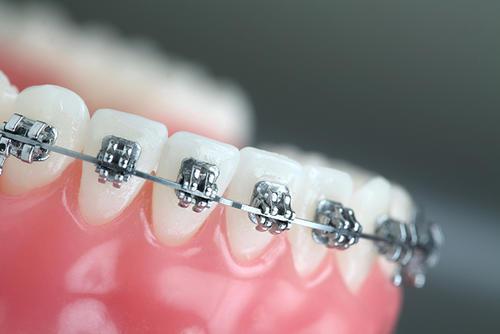 深圳牙齒矯正好處